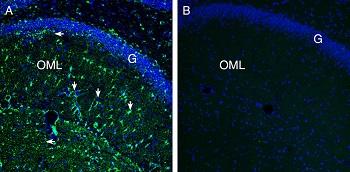 Expression of Secretin Receptor in rat hippocampus