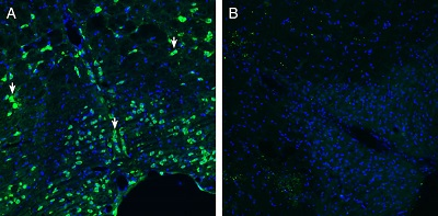 Expression of Calcitonin Receptor-Like Receptor in mouse brain stem