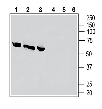 Western blot analysis of rat dorsal root ganglion lysates (lanes 1 and 4), rat lung membranes (lanes 2 and 5) and rat heart membranes (lanes 3 and 6):