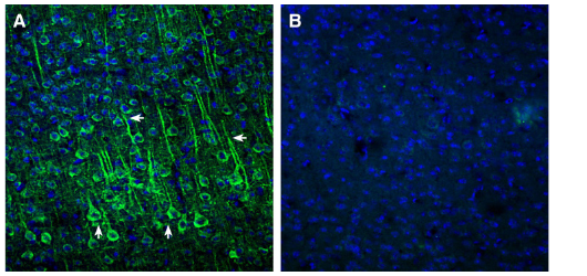 Expression of EphA2 in mouse cortex.