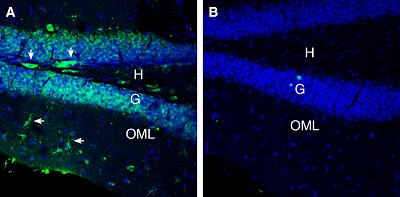 Expression of 5HT7 Receptor in mouse hippocampus