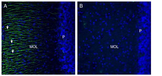 Expression of Otopetrin-1 in rat cerebellum.