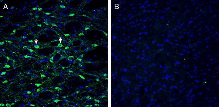 Expression of Histamine H1 Receptor in mouse substantia nigra