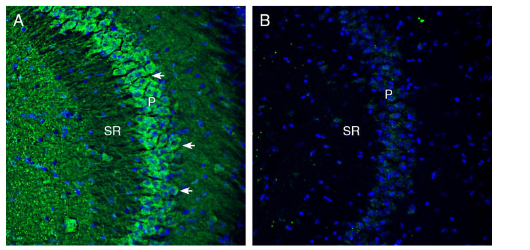 Expression of Cortactin in mouse hippocampus.