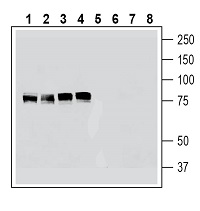 Western blot analysis of human K562 erythroleukemia cell line lysate (lanes 1 and 5), human HeLa cervical adenocarcinoma cell line lysate (lanes 2 and 6), human U-87MG glioblastoma cell line lysate (lanes 3 and 7) and human MCF-7 breast adenocarcinoma cell line lysate (lanes 4 and 8):