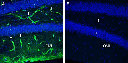 Expression of MERTK in mouse hippocampus