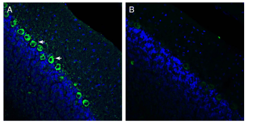 Expression of Renin Receptor in rat cerebellum.