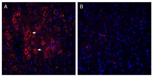 Expression of VGLUT2 in rat parietal cortex.