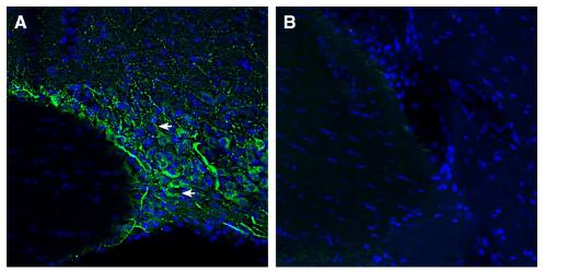 Expression of SMCT1 in rat supraoptic nucleus.