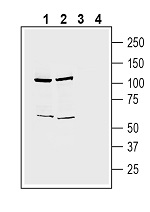 Western blot analysis of human Jurkat T-cell leukemia cell line lysate (lanes 1 and 3) and human HepG2 hepatocellular carcinoma cell line lysate (lanes 2 and 4):