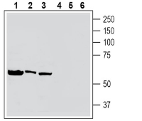 Western blot analysis of human HL-60 acute promyelocytic leukemia cell line lysate (lanes 1 and 4), human K562 erythroleukemia cell line lysate (lanes 2 and 5) and human Daudi Burkitt's lymphoma cell line lysate (lanes 3 and 6):