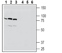 Western blot analysis of human THP-1 monocytic leukemia cell line lysates (lanes 1 and 4), mouse BV-2 microglia cell line lysates (lanes 2 and 5) and human HeLa cervix adenocarcinoma cell line lysates (lanes 3 and 6):