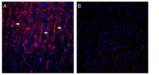 Expression of GPR183 in in rat parietal cortex.