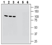 Western blot analysis of human HepG2 hepatocarcinoma cell line lysate (lanes 1 and 4), human Jurkat T-cell leukemia cell line lysate (lanes 2 and 5) and human THP-1 monocytic leukemia cell line lysate (lanes 3 and 6):