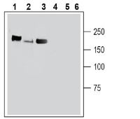 Western blot analysis of mouse brain membranes (lanes 1 and 4), rat brain membranes (lanes 2 and 5) and rat new born brain membranes (lanes 3 and 6):