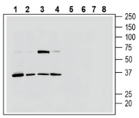 Western blot analysis of rat brain lysate (lanes 1 and 5), mouse brain membranes (lanes 2 and 6), rat dorsal root ganglia lysate (lanes 3 and 7) and rat spleen lysate (lanes 4 and 8):