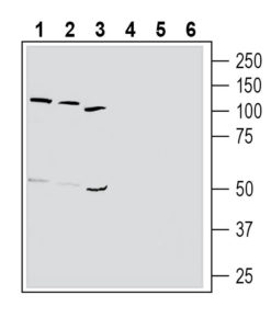 Western blot analysis of human K562 chronic myelogenous leukemia cell line lysate (lanes 1 and 4), human HL-60 promyelocytic leukemia cell line lysate (lanes 2 and 5) and human MEG-01 megakaryoblastic leukemia cell line lysate (lanes 3 and 6):