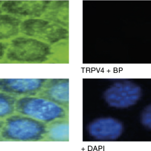 Immunocytochemical staining using Anti-TRPV4 Antibody (ACC-034) within the presence or absence of blocking peptide.