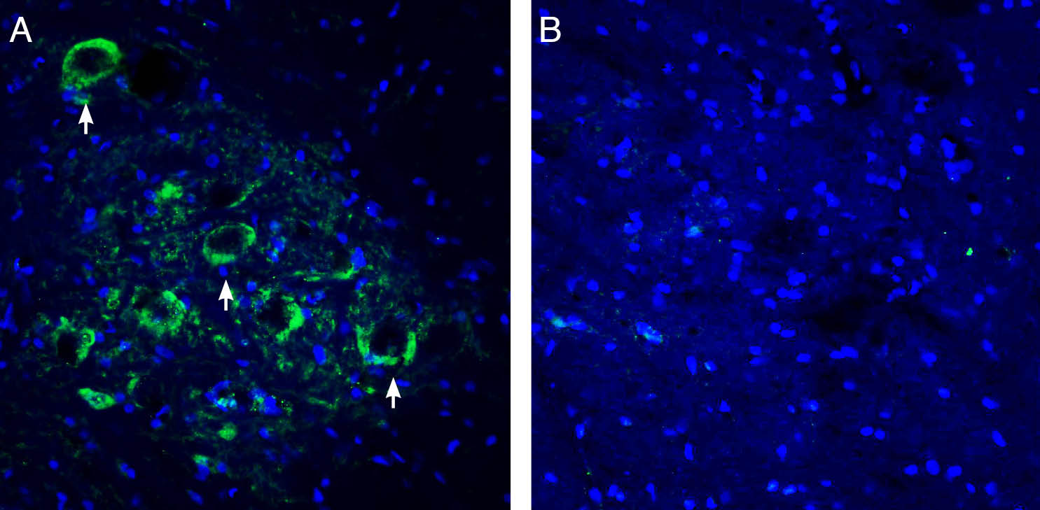 Expression of Connexin-47 in rat spinal cord ventral horn region.