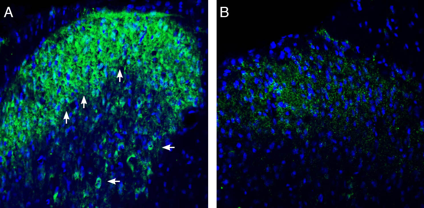 Expression of Connexin-47 in rat spinal cord dorsal horn region.