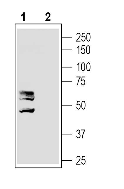 Western blot analysis of rat dorsal root ganglion lysates: