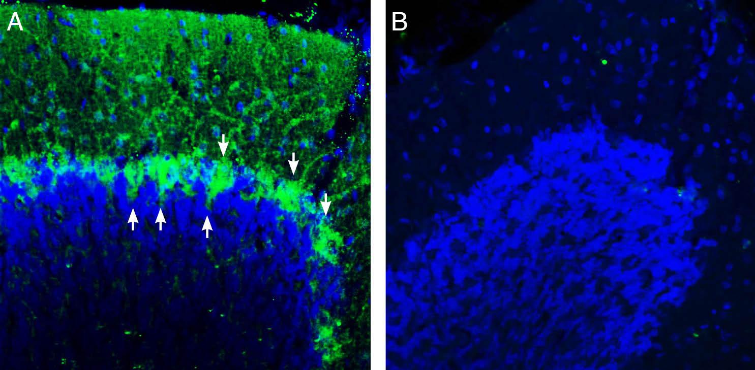 Expression of Beta 1 Na+/K+ATPase in rat cerebellum.