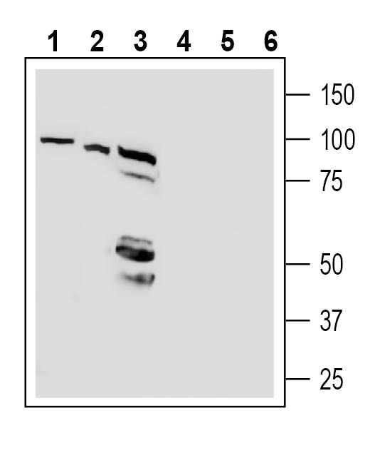 Western blot analysis of human Jurkat T-cell leukemia cell line lysates (lanes 1 and 4), human HepG2 hepatocellular carcinoma cell line lysate (lanes 2 and 5) and human Colo-205 colon carcinoma cell line lysates (lanes 3 and 6):